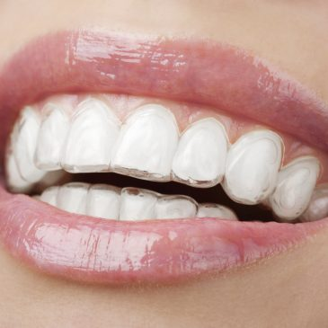 COSMETIC DENTISTRY AT MARIETTA